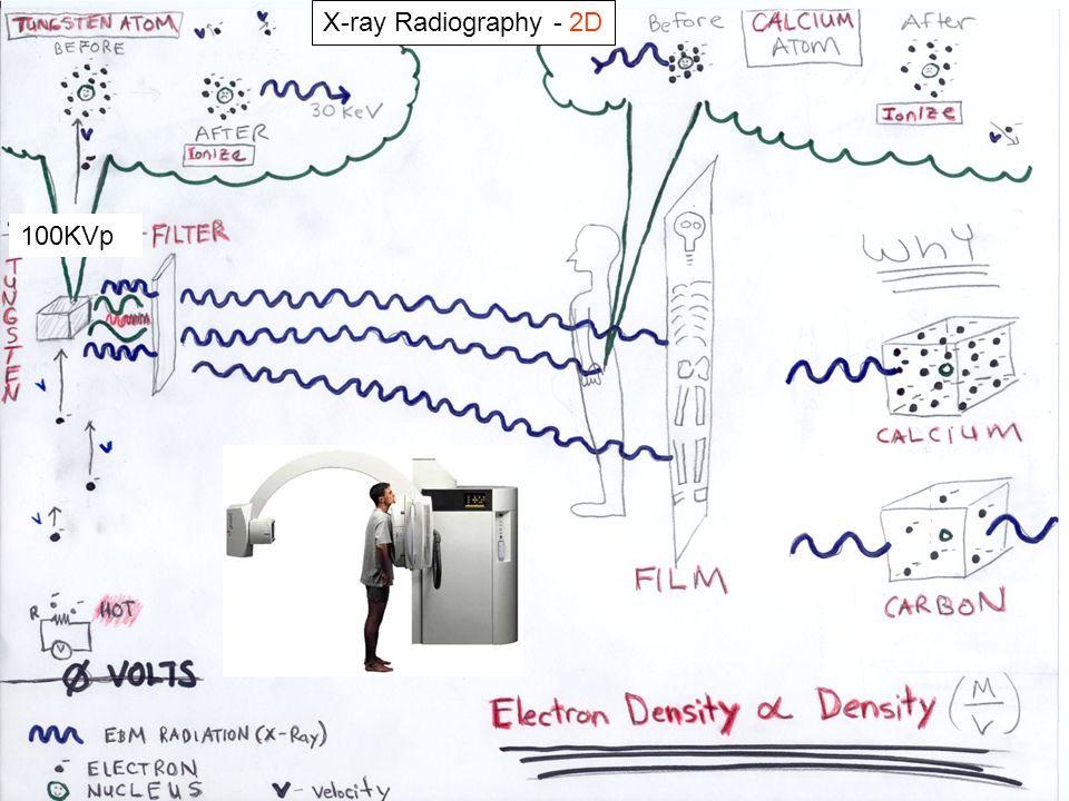 X-ray Radiography - 2D 100KVp
