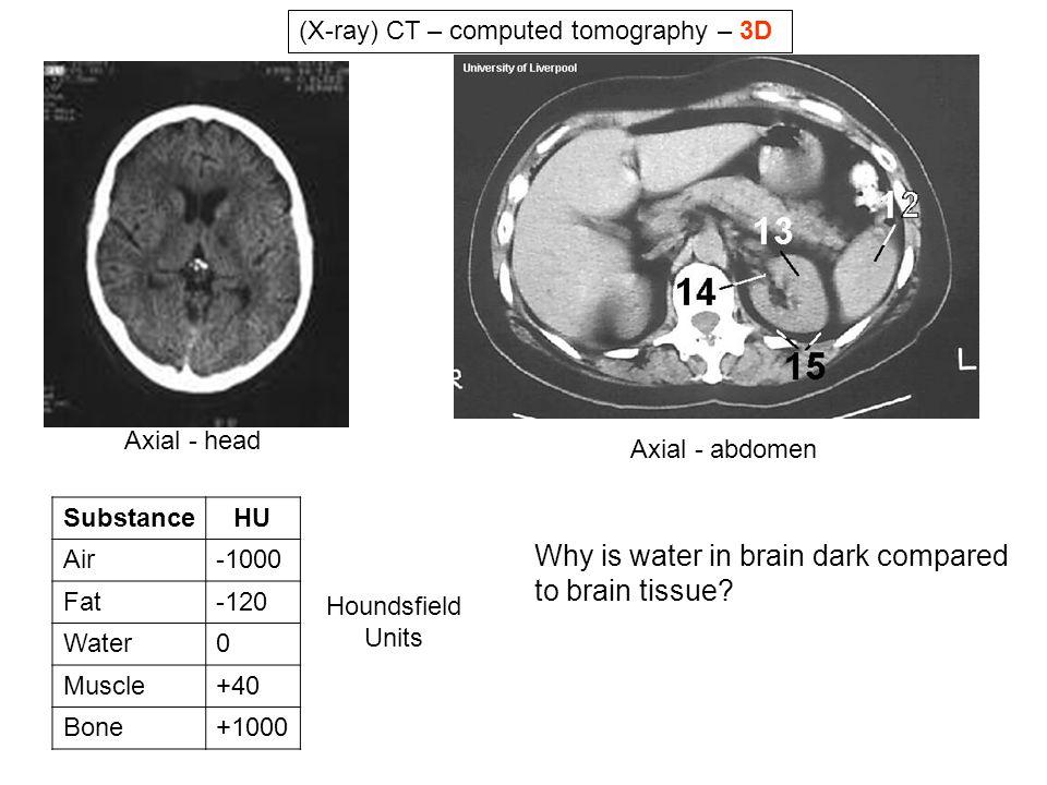 Why is water in brain dark compared to brain tissue