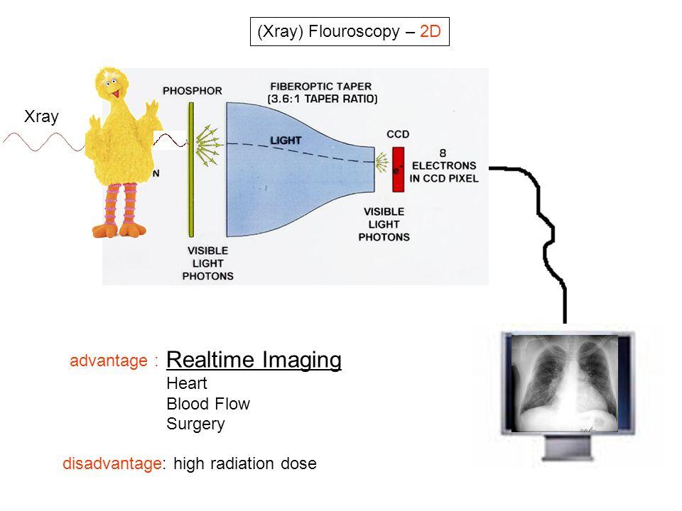 Realtime Imaging (Xray) Flouroscopy – 2D Xray advantage : Heart