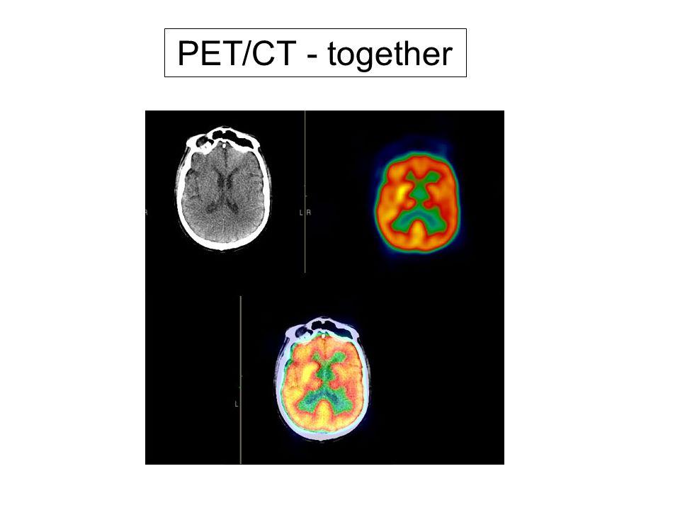 PET/CT - together