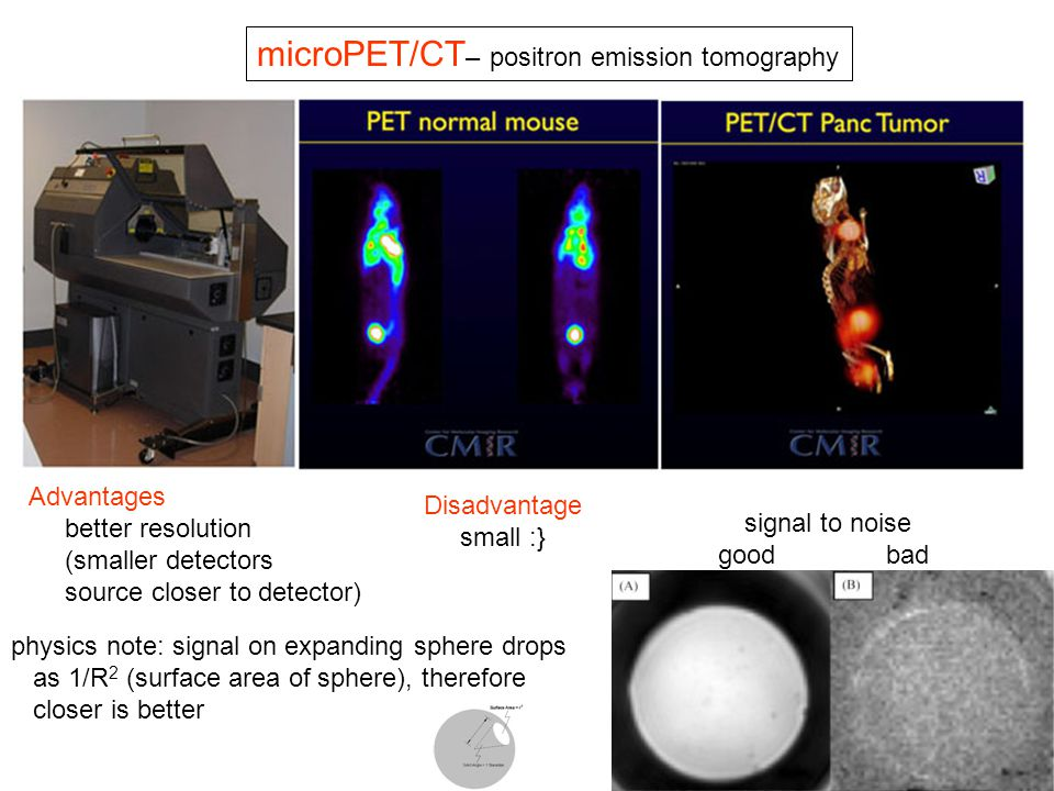 microPET/CT– positron emission tomography