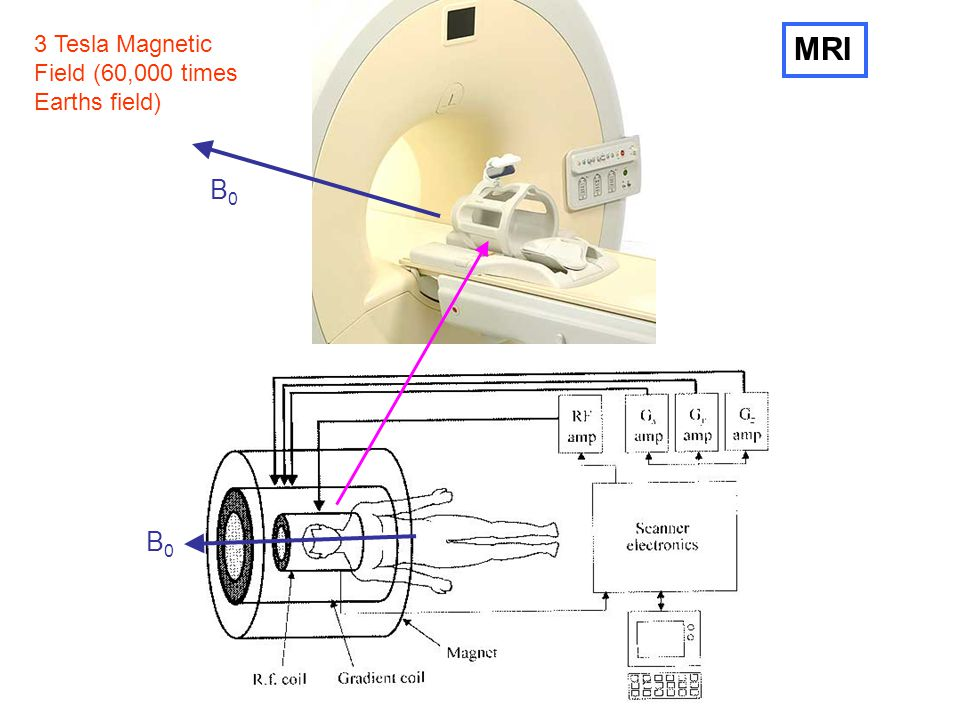3 Tesla Magnetic Field (60,000 times Earths field) MRI B0 B0