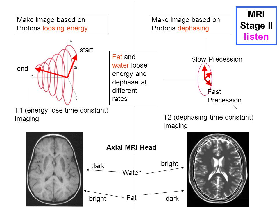 MRI Stage II listen Make image based on Protons loosing energy