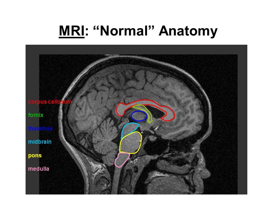 MRI: Normal Anatomy corpus callosum fornix thalamus midbrain pons