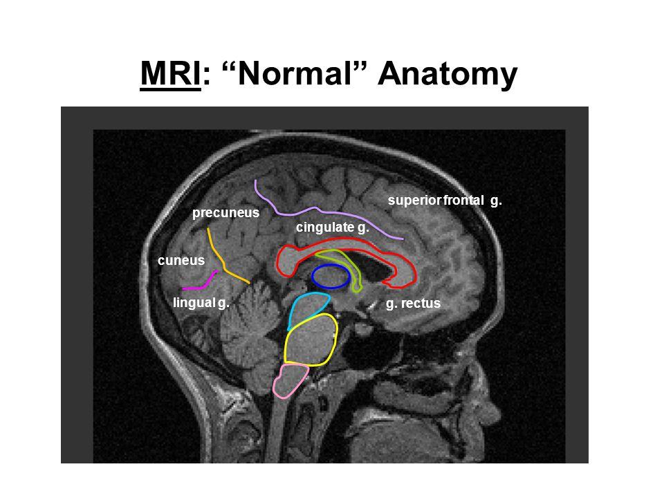 MRI: Normal Anatomy superior frontal g. precuneus cingulate g.