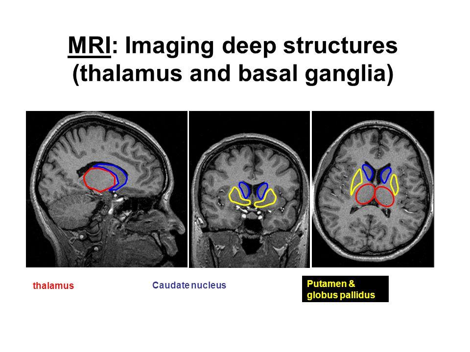 MRI: Imaging deep structures (thalamus and basal ganglia)