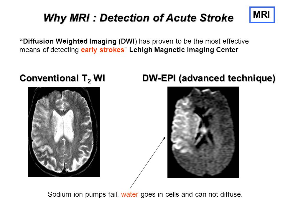 Why MRI : Detection of Acute Stroke
