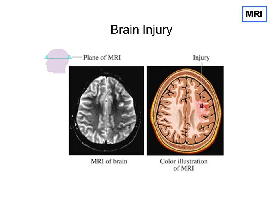 MRI Brain Injury