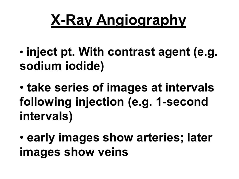 X-Ray Angiography inject pt. With contrast agent (e.g. sodium iodide)
