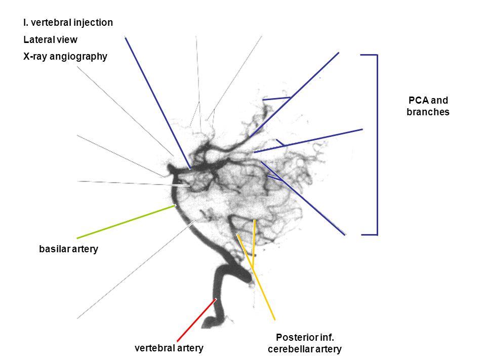 Posterior inf. cerebellar artery