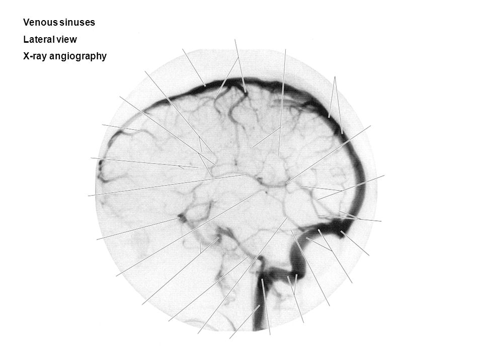 Venous sinuses Lateral view X-ray angiography