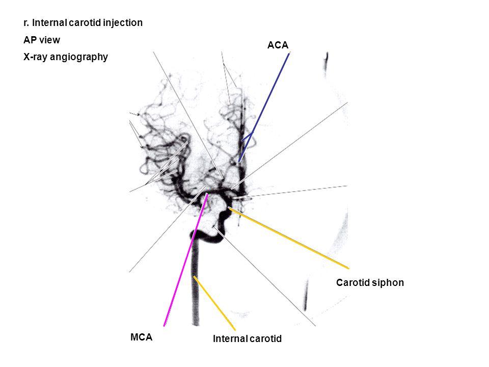 r. Internal carotid injection