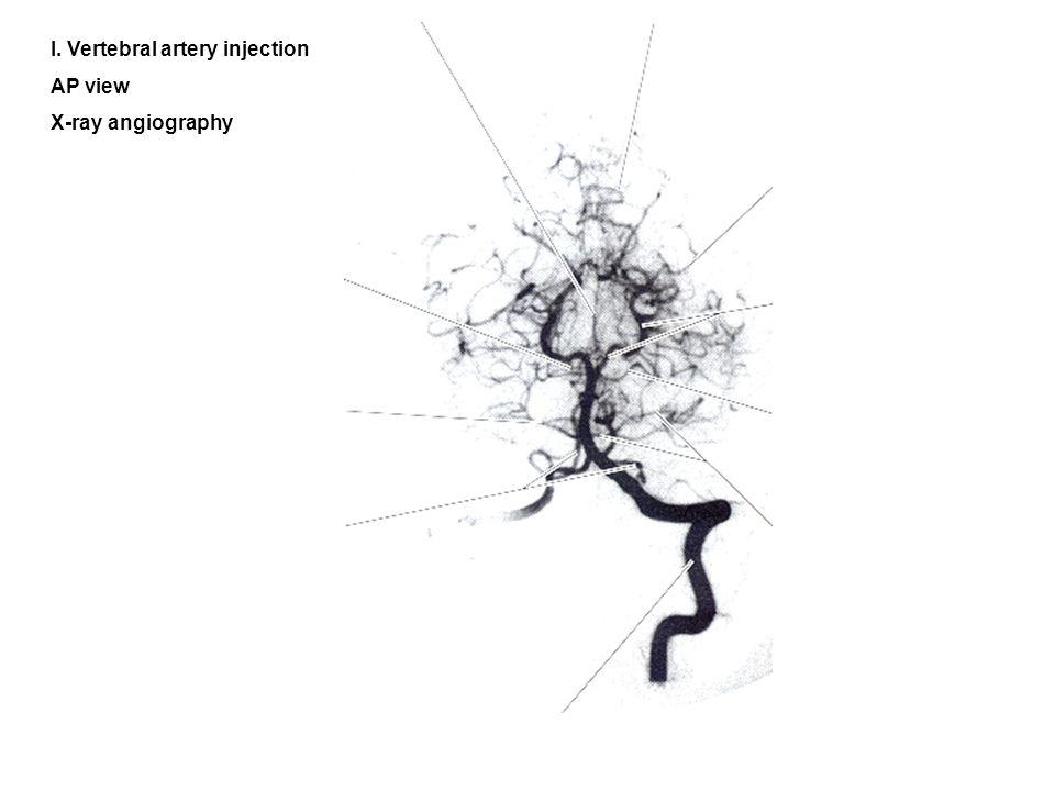 l. Vertebral artery injection
