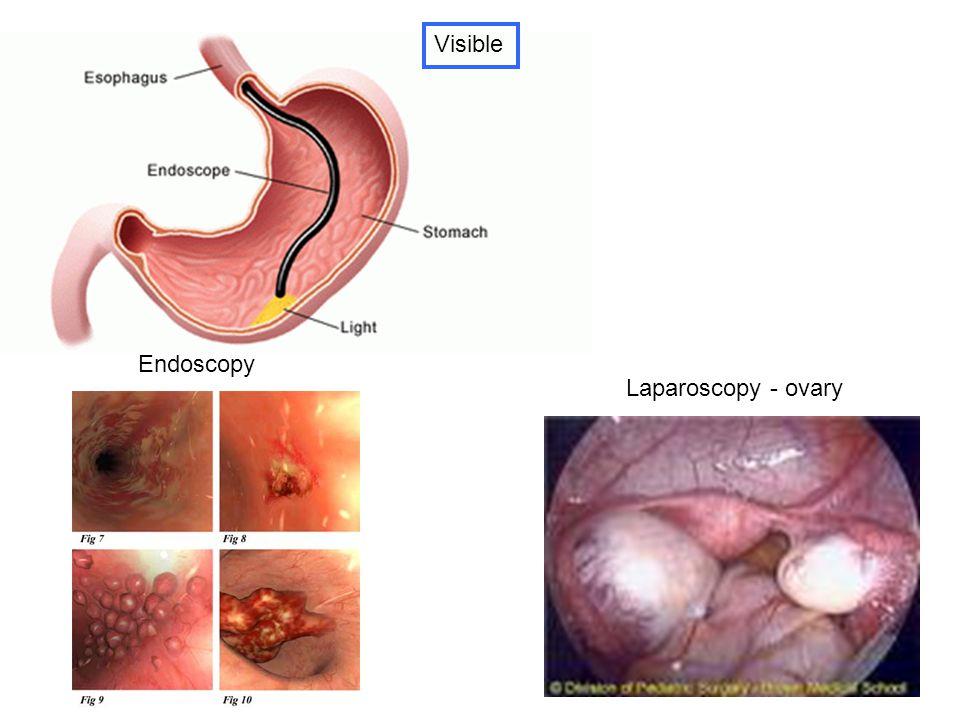 Visible Endoscopy Laparoscopy - ovary