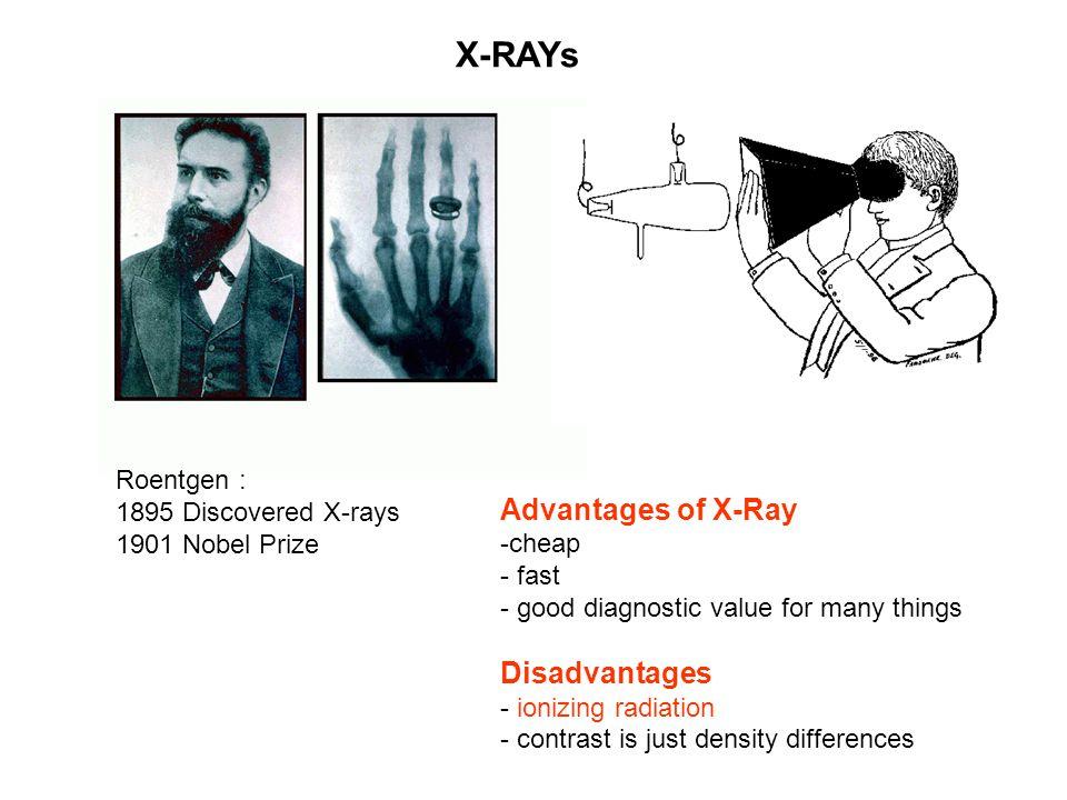 X-RAYs Advantages of X-Ray Disadvantages Roentgen :