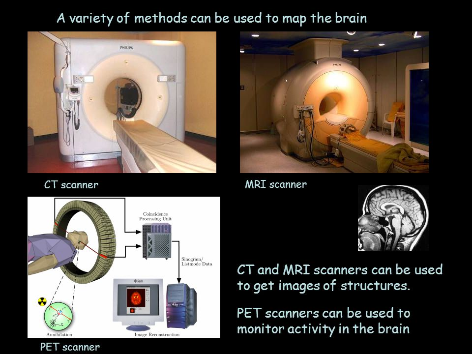 A variety of methods can be used to map the brain