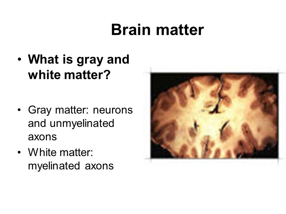 Brain matter What is gray and white matter