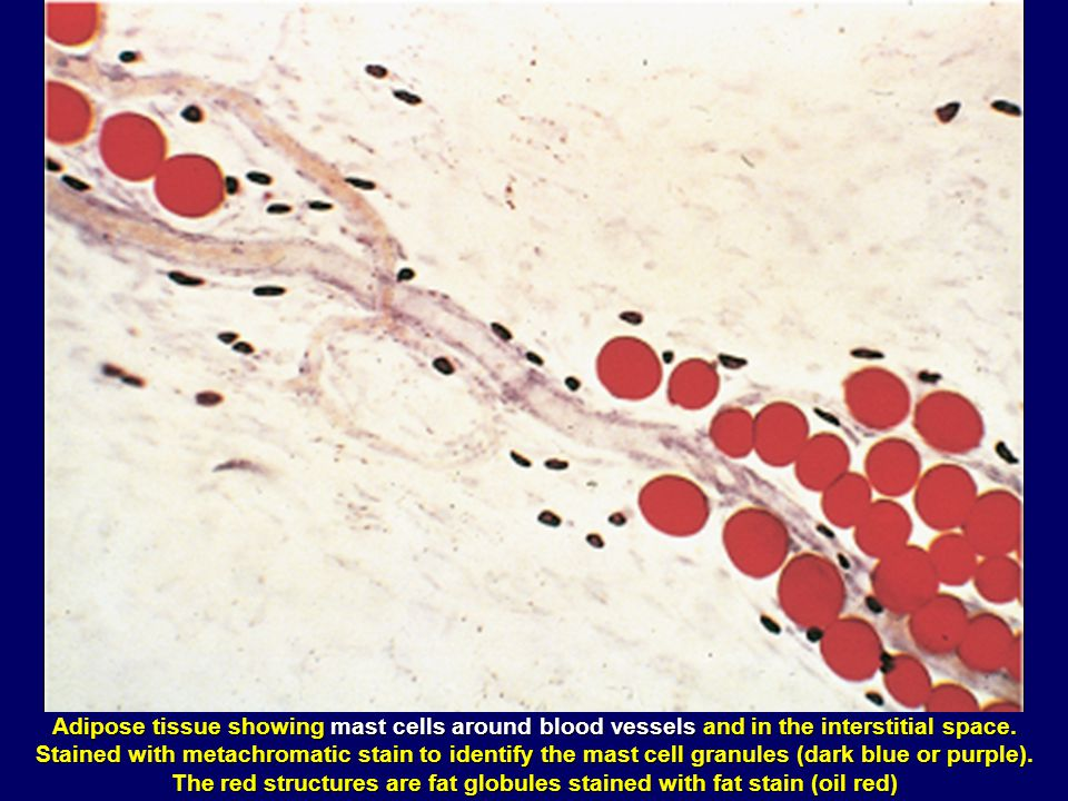 The red structures are fat globules stained with fat stain (oil red)