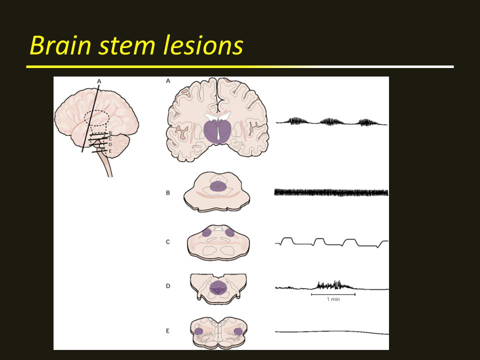 Brain stem lesions