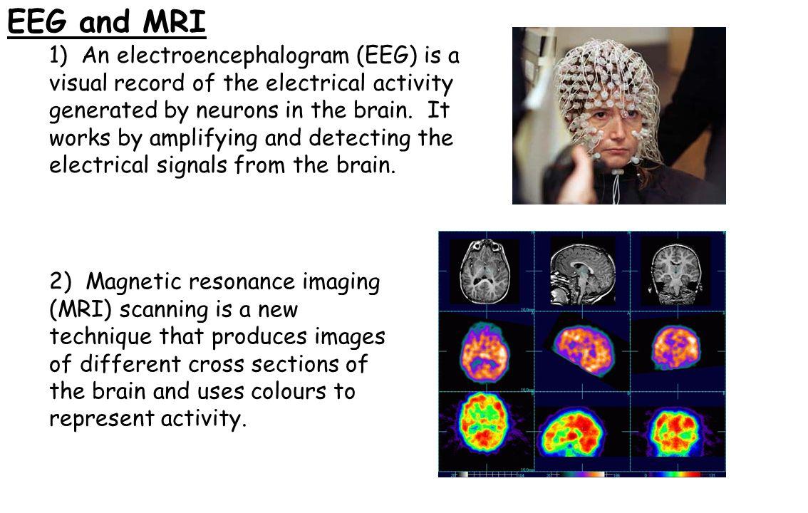 EEG and MRI