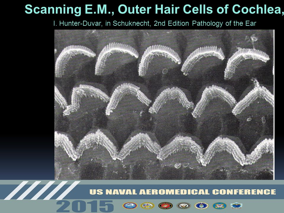 Scanning E.M., Outer Hair Cells of Cochlea,