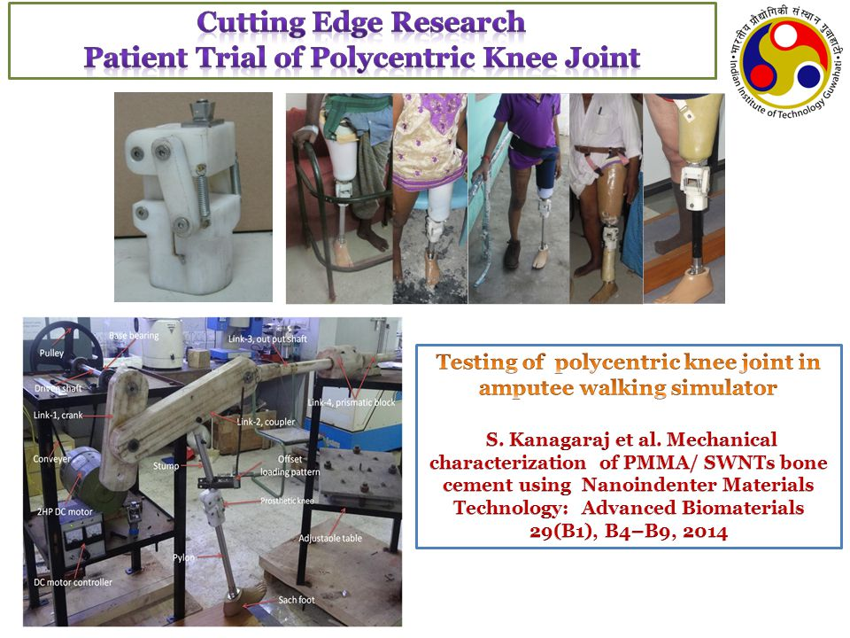 Cutting Edge Research Patient Trial of Polycentric Knee Joint
