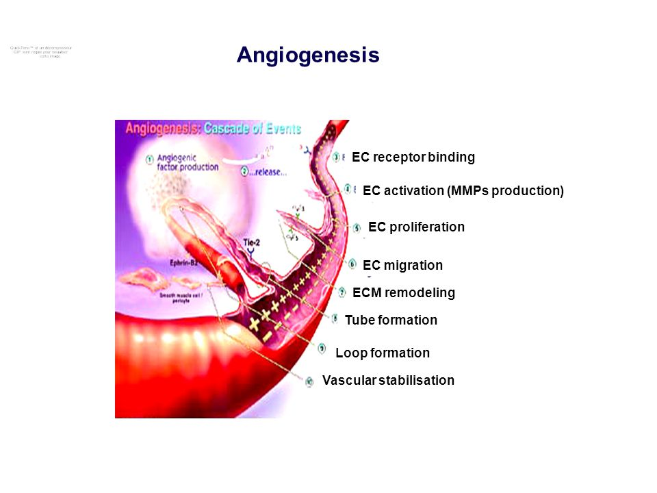 Angiogenesis EC receptor binding EC activation (MMPs production)