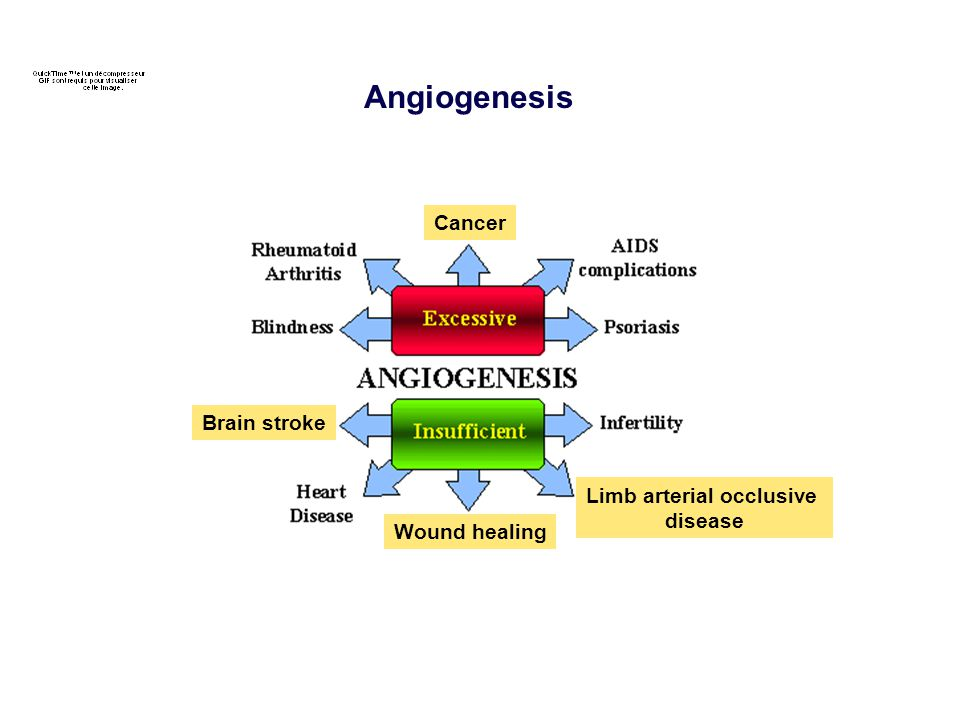 Limb arterial occlusive