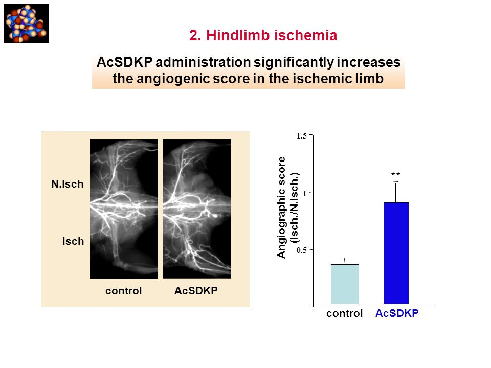 2. Hindlimb ischemia AcSDKP administration significantly increases