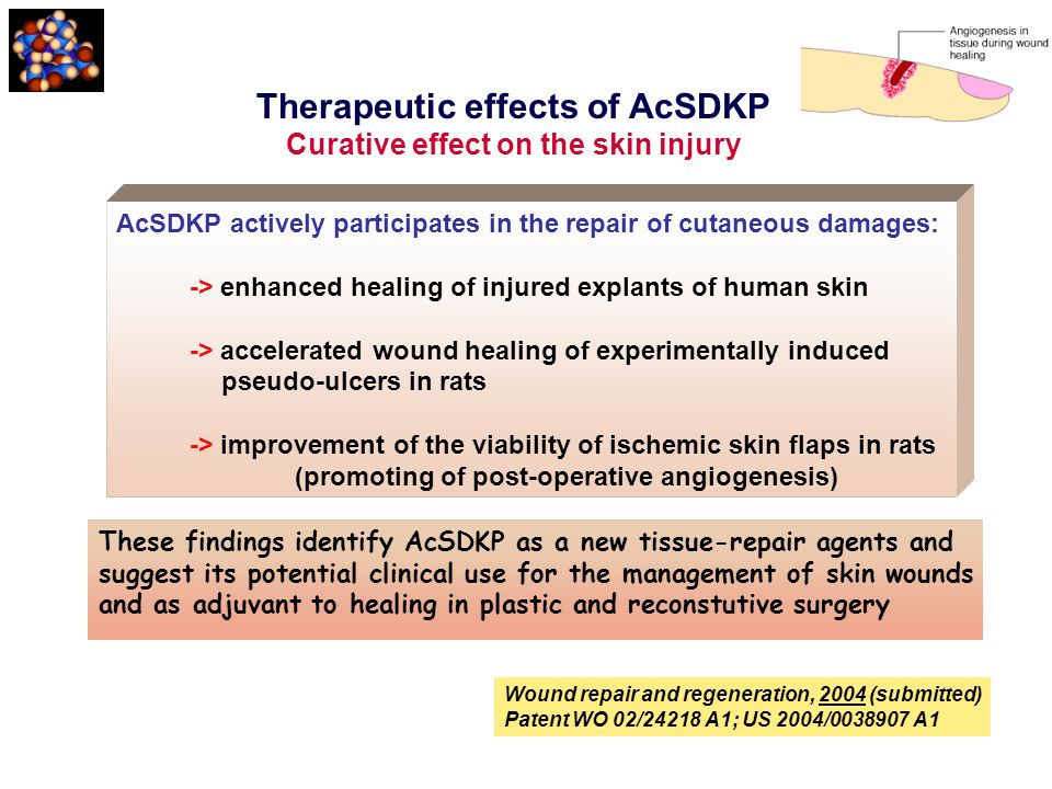 Therapeutic effects of AcSDKP Curative effect on the skin injury