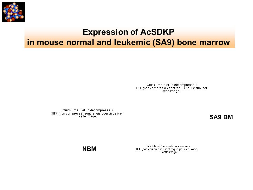 in mouse normal and leukemic (SA9) bone marrow