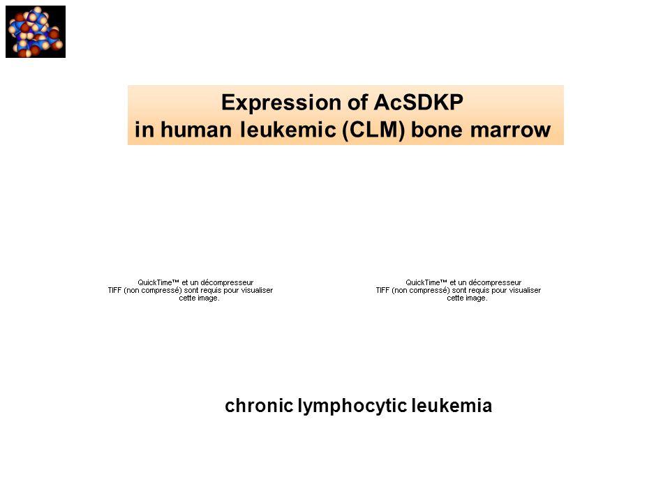 in human leukemic (CLM) bone marrow