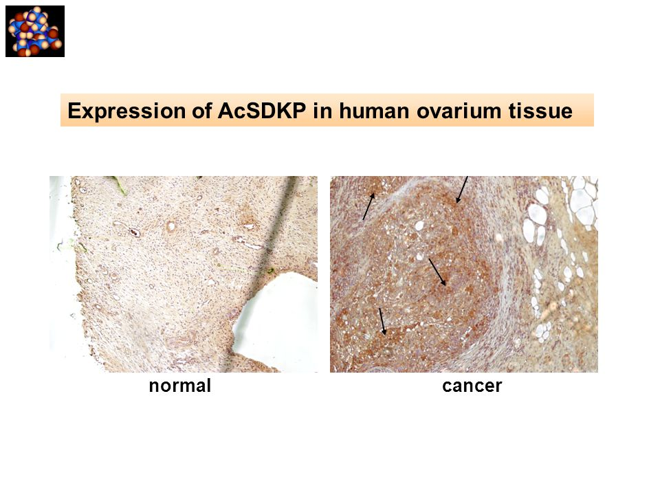 Expression of AcSDKP in human ovarium tissue