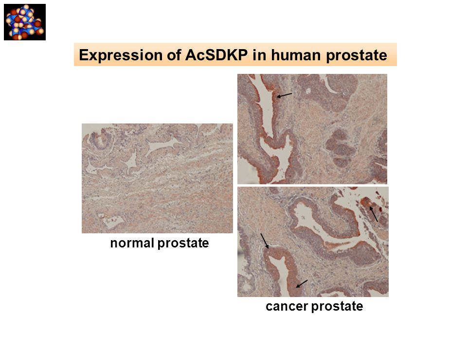 Expression of AcSDKP in human prostate