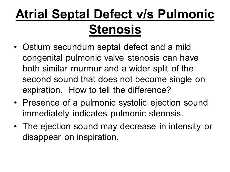 Atrial Septal Defect v/s Pulmonic Stenosis