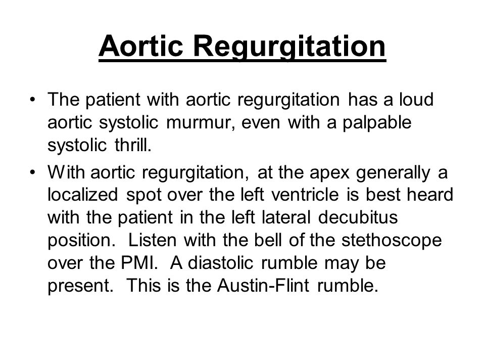 Aortic Regurgitation The patient with aortic regurgitation has a loud aortic systolic murmur, even with a palpable systolic thrill.