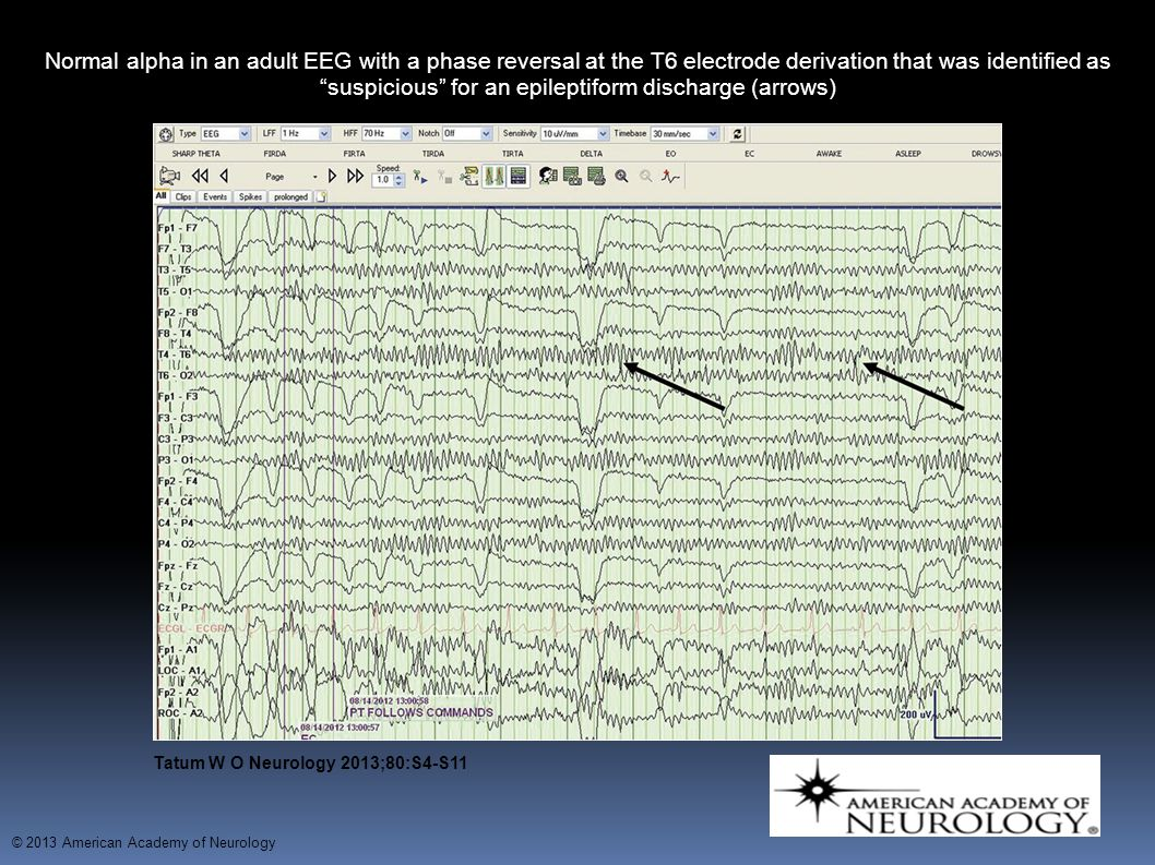 Normal alpha in an adult EEG with a phase reversal at the T6 electrode derivation that was identified as suspicious for an epileptiform discharge (arrows)‏