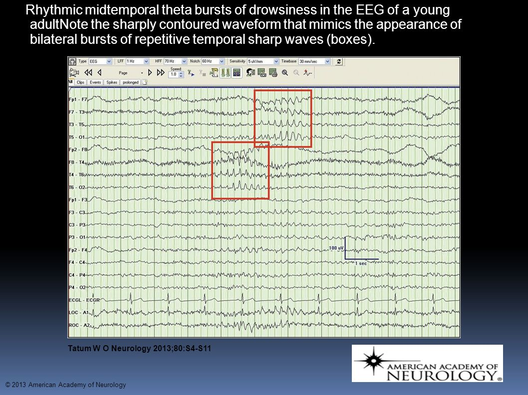 Rhythmic midtemporal theta bursts of drowsiness in the EEG of a young adultNote the sharply contoured waveform that mimics the appearance of bilateral bursts of repetitive temporal sharp waves (boxes).
