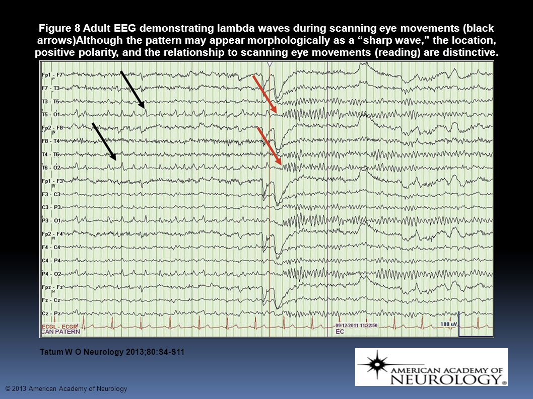 Figure 8 Adult EEG demonstrating lambda waves during scanning eye movements (black arrows)Although the pattern may appear morphologically as a sharp wave, the location, positive polarity, and the relationship to scanning eye movements (reading) are distinctive.