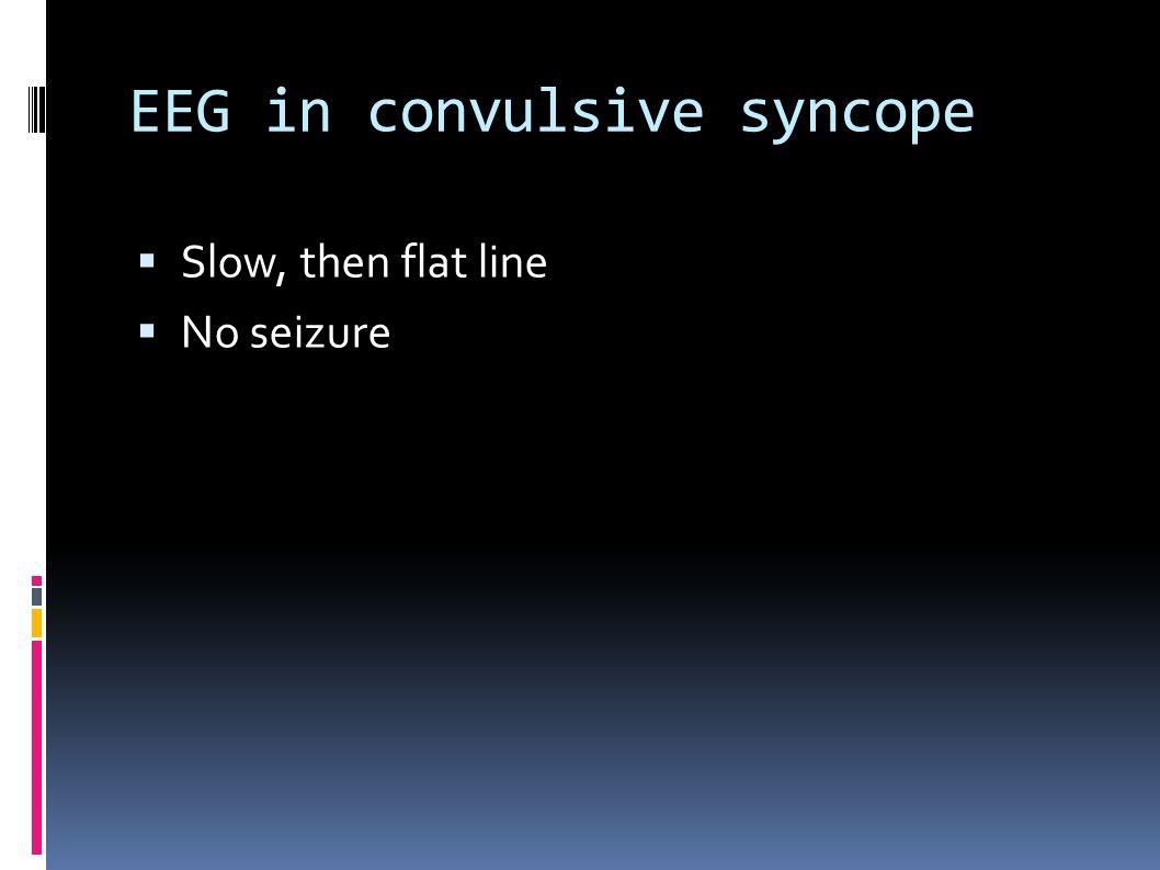 EEG in convulsive syncope