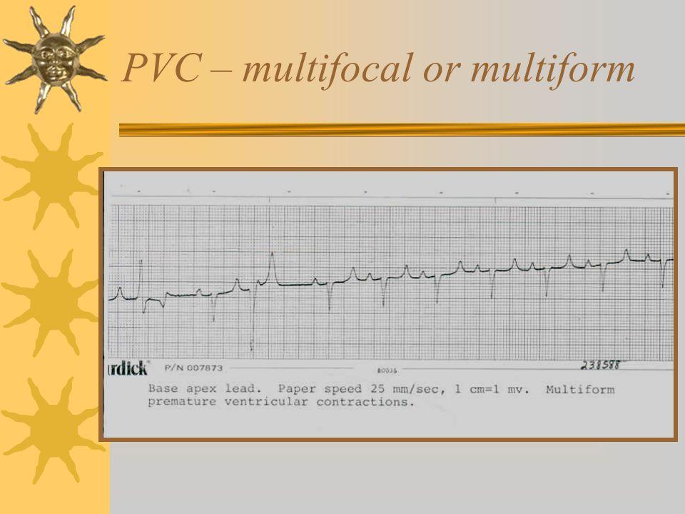 PVC – multifocal or multiform