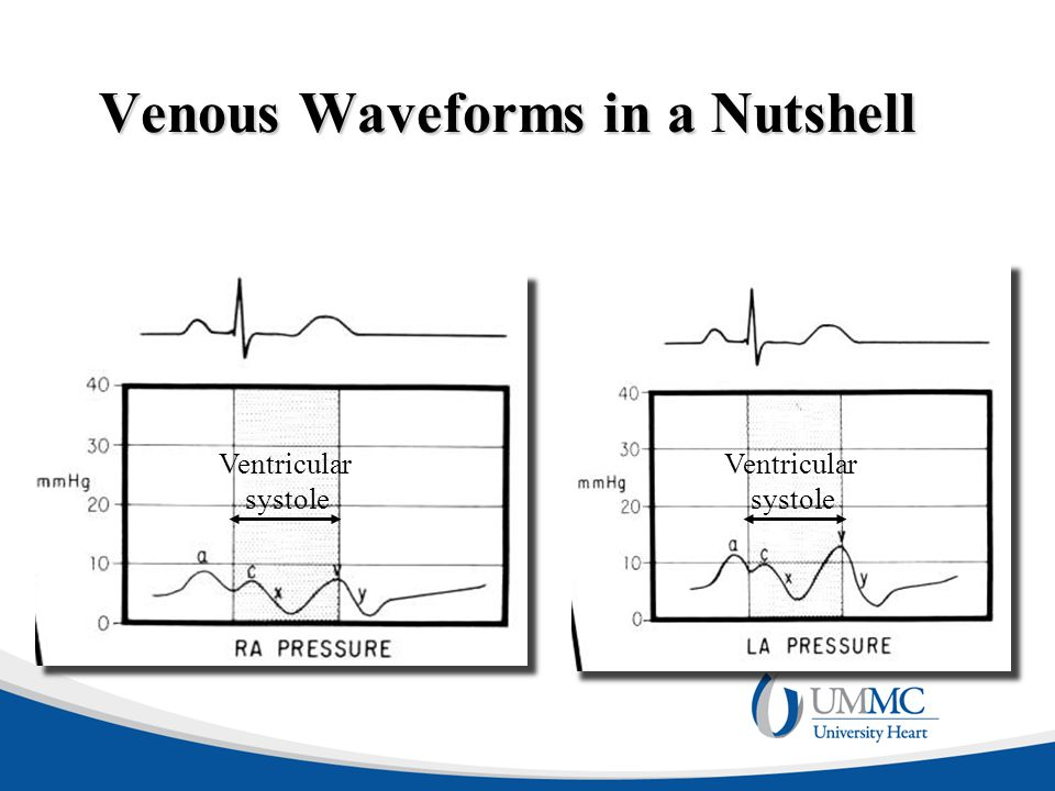 Venous Waveforms in a Nutshell