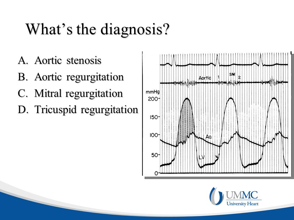 What's the diagnosis Aortic stenosis Aortic regurgitation