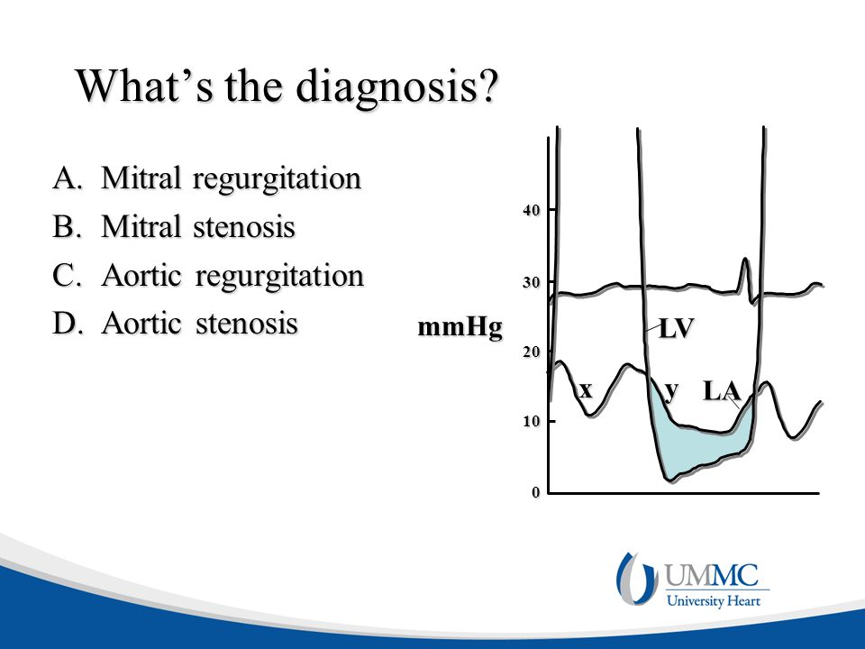 What's the diagnosis Mitral regurgitation Mitral stenosis