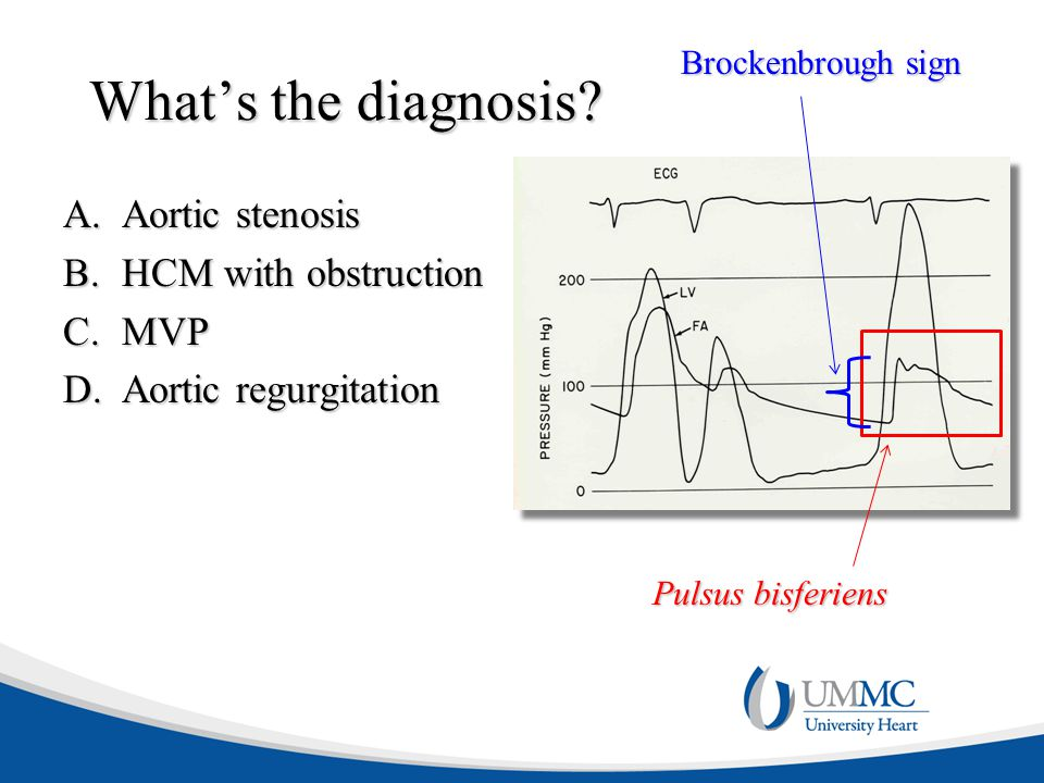 What's the diagnosis Aortic stenosis HCM with obstruction MVP