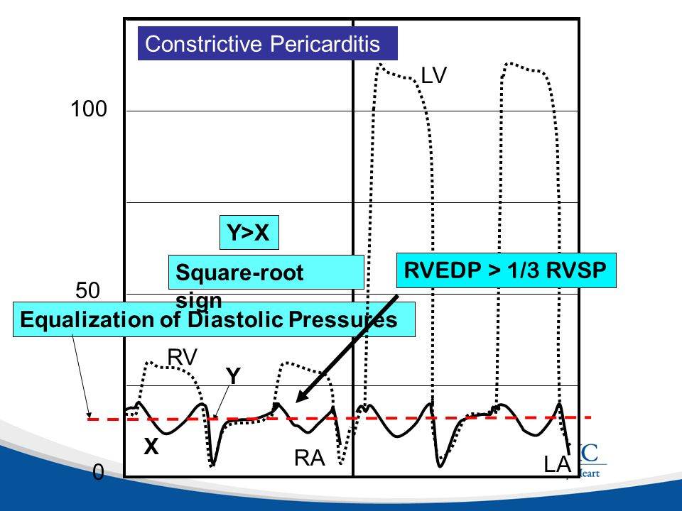 125 LA. Equalization of Diastolic Pressures. 25. 50. 75. 100. RA. RV. LV. Constrictive Pericarditis.