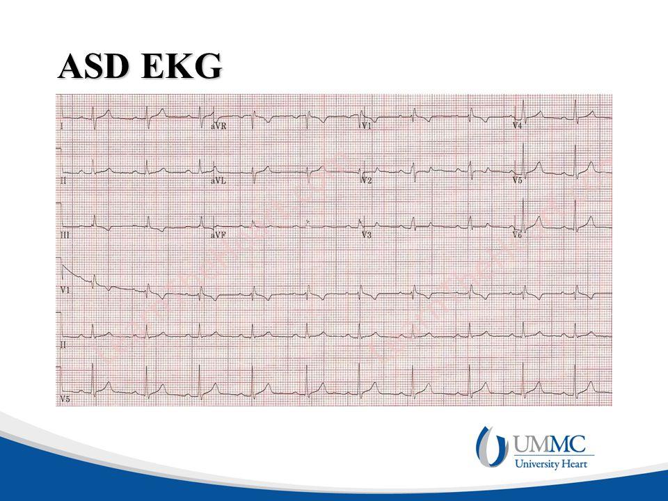 ASD EKG