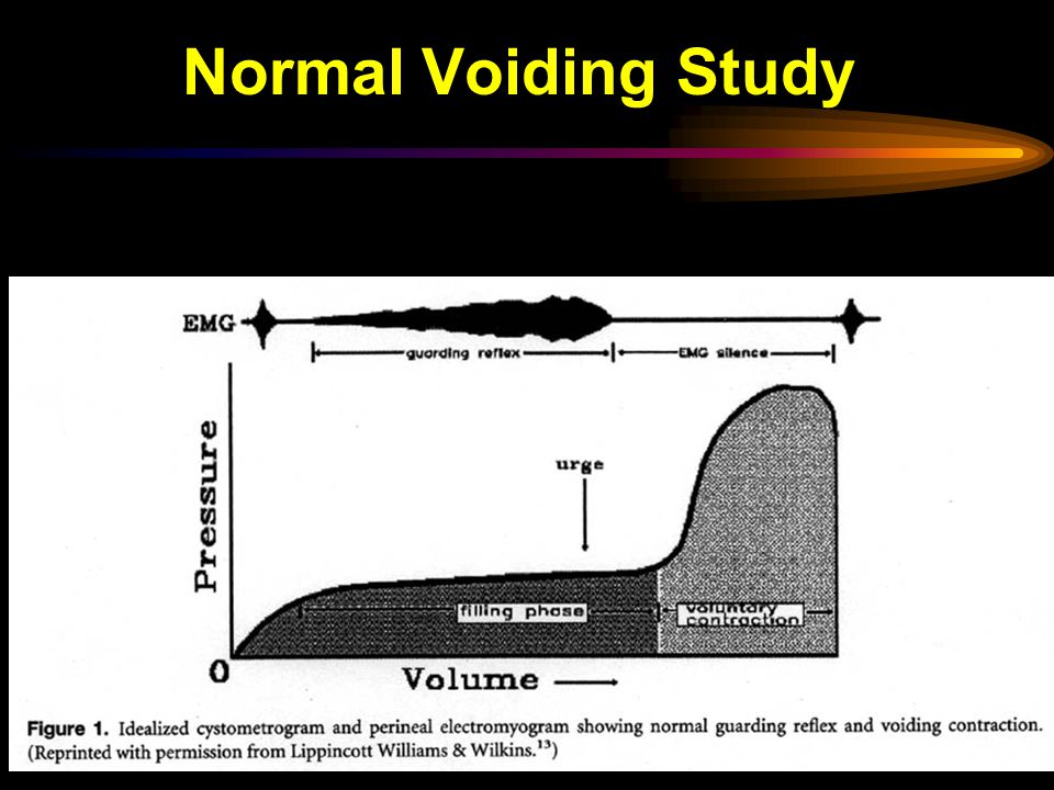 Normal Voiding Study