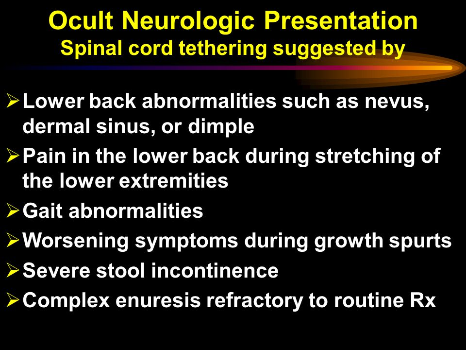 Ocult Neurologic Presentation Spinal cord tethering suggested by