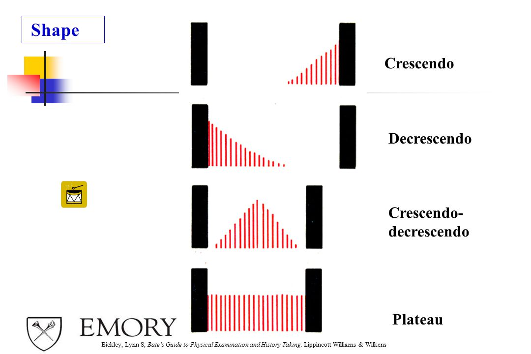 Shape Crescendo Decrescendo Crescendo- decrescendo Plateau 1 2 3 4